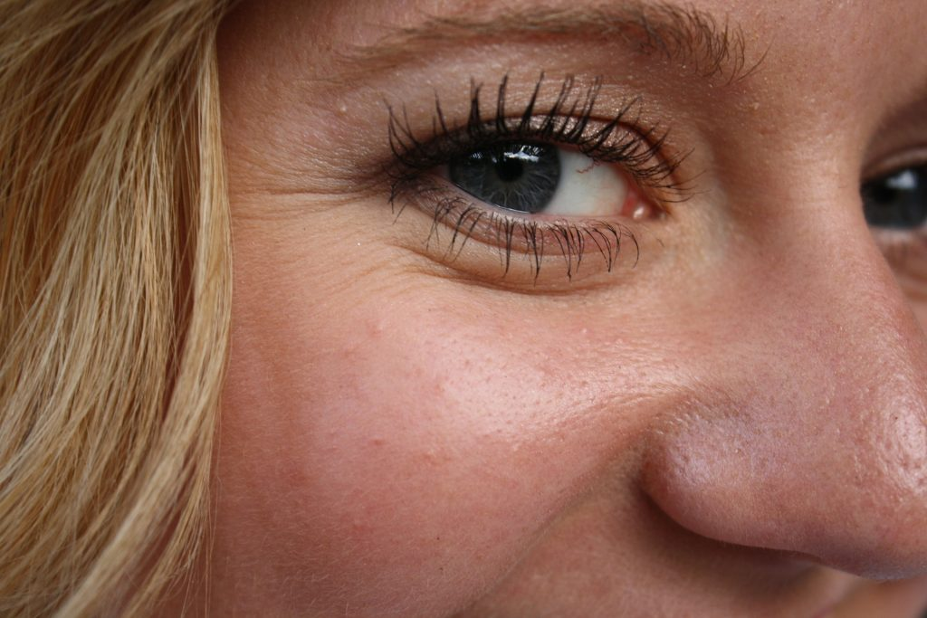 under eye wrinkle treatment