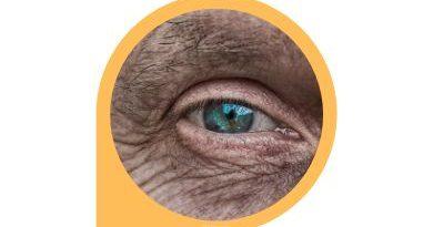 under eye wrinkle treatment (mini)