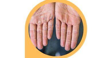 Callus Remover For Hands PEGRU