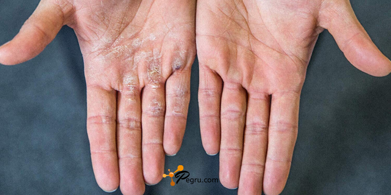 Callus Remover For Hands